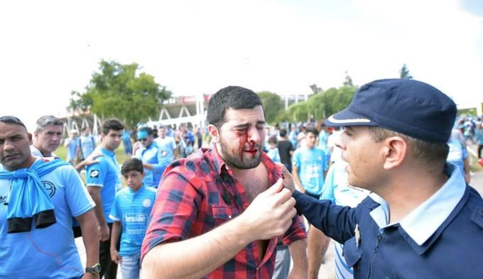 Policía le dio un tiro en el ojo a un hincha de Belgrano